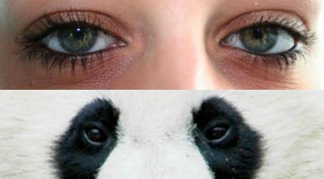 Cara Ampuh Menghilangkan Mata Panda Secara Cepat dan Alami