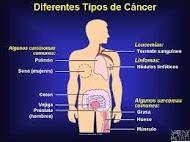 Diferentes tipos de cáncer