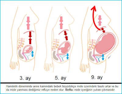 gebelikte mide yanması, gebelikte reflü