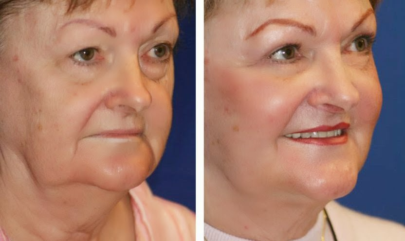 Non-Surgical Facelifts Obtained With Face Aerobics ...