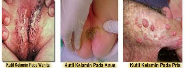 Contoh penyakit kutil kelamin atau kondiloma