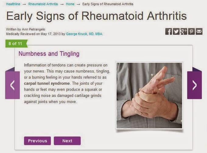 Early rheumatoid arthritis symptoms
