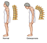 Dapat Mencegah Osteoporosis
