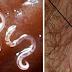 Cari Tahu Keberadaan Parasit Dalam tubuh dan Cara Menghilangkanya Secara Alami