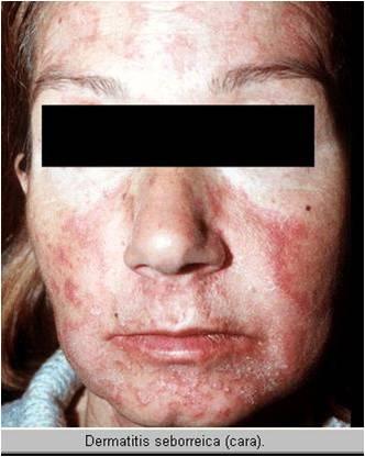 causa dermatitis seborreica: