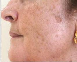 eliminar mancha hongo piel: