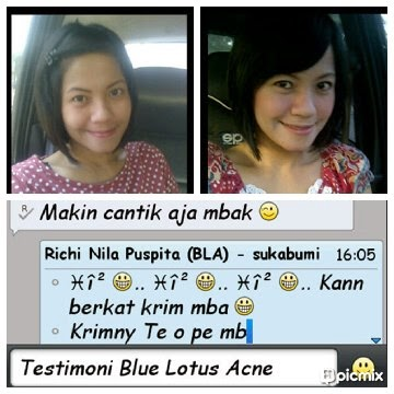 Blue Lotus Acne Skin Series