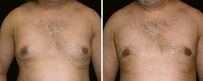 Pseudo-gynecomastia Treated by CoolSculpting!