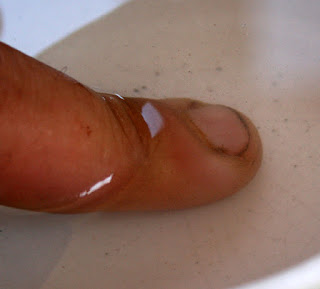 Infected finger in hot salt water