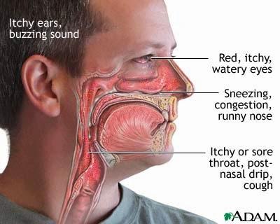 resdung sinus