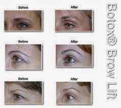 botox brows lift