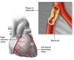 acute coronary syndrome definition