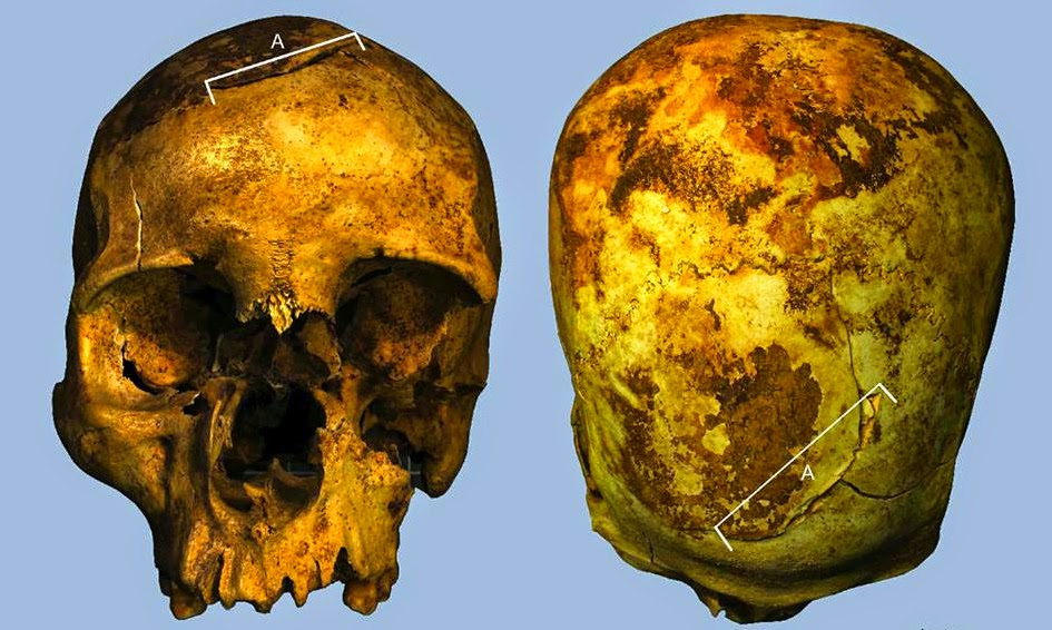 Forensic analysis reveals Pharaoh was killed in battle