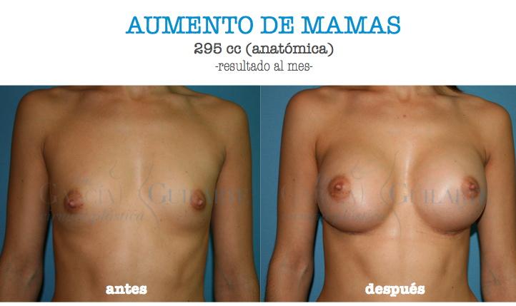 Implantes mamarios en lex ky