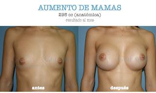 aumento_pecho_mamas_madrid_cirujano_plastico