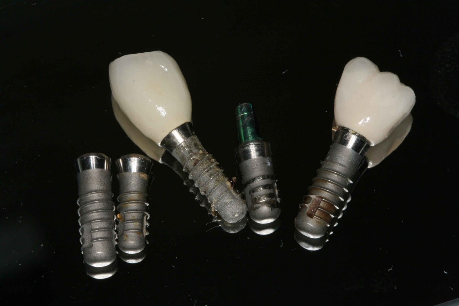 31 Oct 2011  What's up with $399 Dental Implants? (Above: failed implants referred to our   office for removalall implant knock-offs). Squeezed between