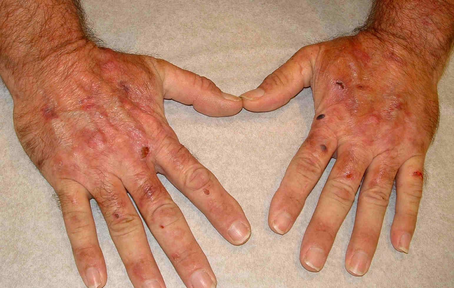 Porphyria cutanea tarda disease
