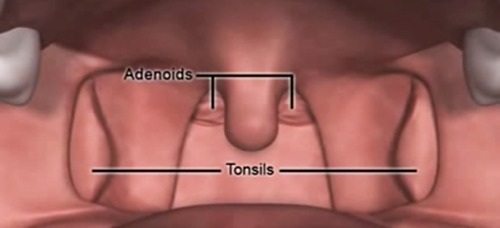 adenoids - what are adenoids? - ency123, Human Body