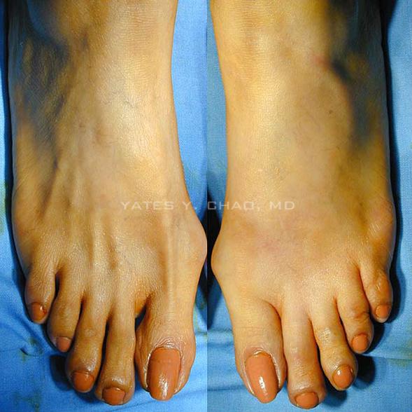 自體脂肪移植美化腳背, fat transfer for dorsal foot