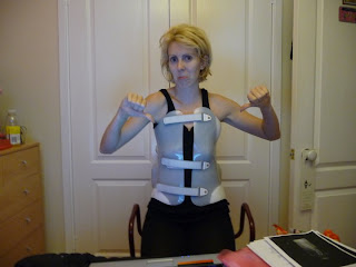2 weeks after scoliosis surgery in my post op brace