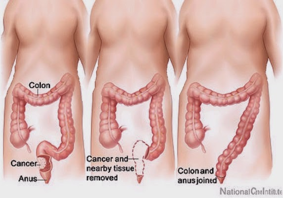 How To Remove Toxins And Waste From The Colon With