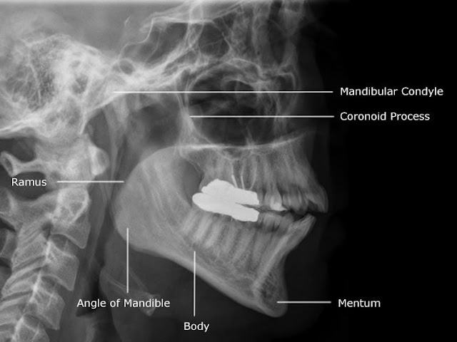 Mandible x-ray anatomy lateral | Radiology Anatomy Images