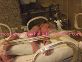 Laura ao nascer no dia 23/01/2011 com 2.540kg e 43cm .. muito linda