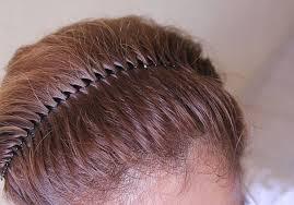 Perlu Diingat, Bahwa Aksesoris Rambut Itu Dapat Menyebabkan Kerusakan Pada Rambut