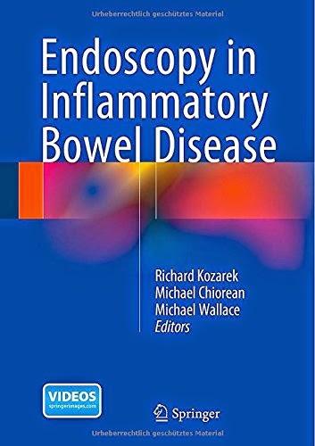 http://www.kingcheapebooks.com/2015/04/endoscopy-in-inflammatory-bowel-disease.html
