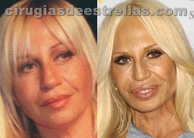 donatella versace antes y despues