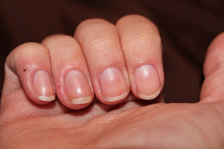 chewed up cuticles