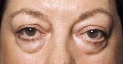 EYE BAGS Solution & Example