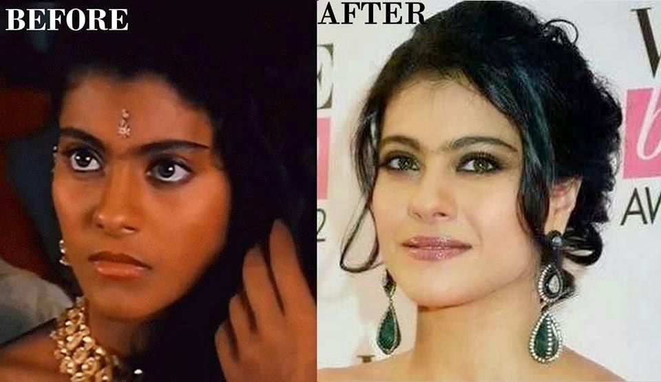pakistani girl bleach cream pics
