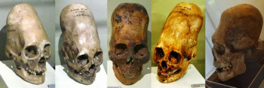 5 'Alien' Skulls That Science Cannot Explain