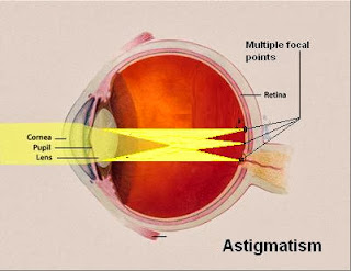 Astigmatism Causes, Symptoms, Diagnosis, Treatment, Prevention