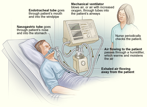 vent breathing machine