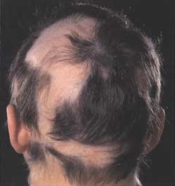 Alopecia Tips On How To Stop Blading  From Happening