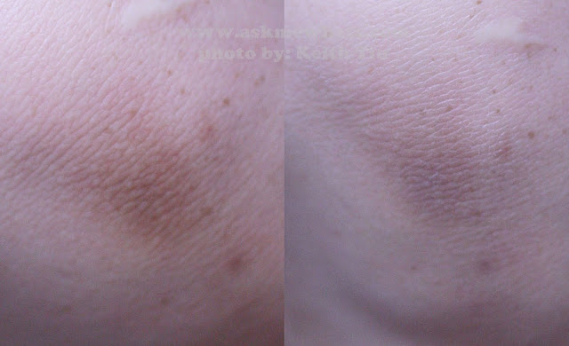 Before and after photo of using A photo of Snow Skin Whitening lotion and cream