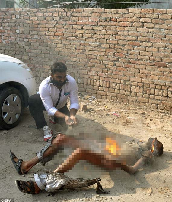 Man sets himself on fire in protest against Taxes
