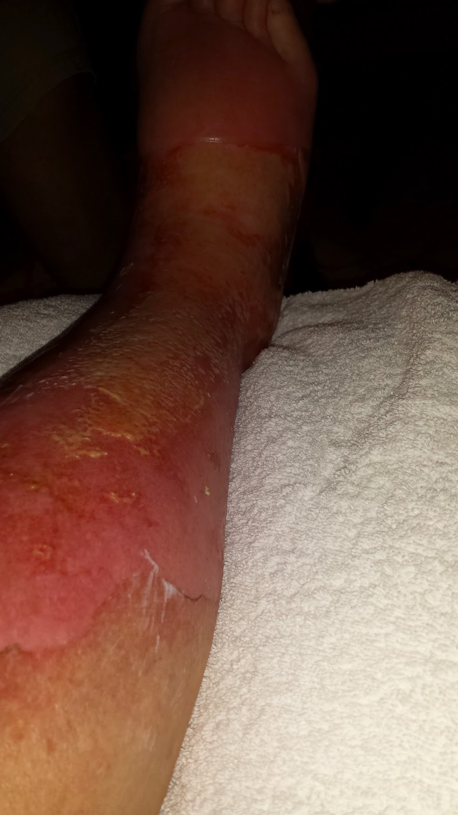 inflammation and full thickness burn Prolonged and excessive inflammatory response is a major cause of  hypertrophic scar formation  excessive scar formation after partial and full- thickness burn.