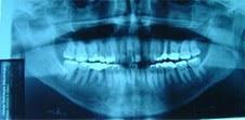 Radiografia Panoramica ! Você já fez uma?