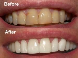 Cara Memutihkan Gigi Dengan Secara Alami Dan Cepat Ilmu