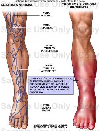 Como mejorar la circulación de la sangre en los pies a varikoze