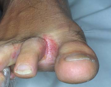 Ho guarito la psoriasi su unghie