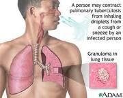 Mengenal Kanker Paru-Paru Mengenai Penyebab, Gejala dan Pengobatan