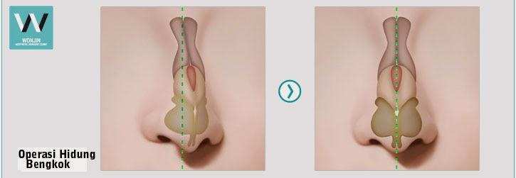 operasi hidung bengkok, operasi plastik wonjin
