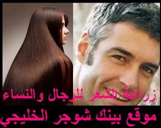 كيفية زراعة الشعر الطبيعي للنساء و للرجال اسعار زرع الشعر في السعودية