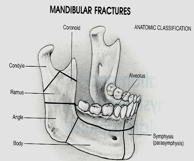 Resultsfrom an already weakened mandible by pathological conditions.-1.bp.blogspot.com