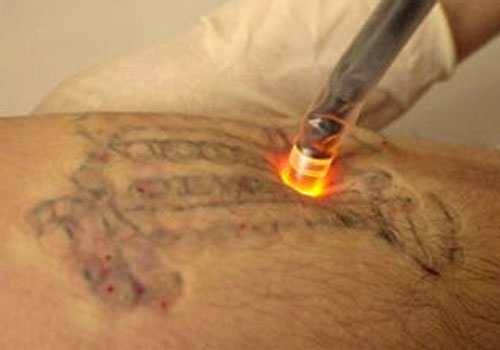 Erase tattoo removal february 2013 for Eraser tattoo removal austin