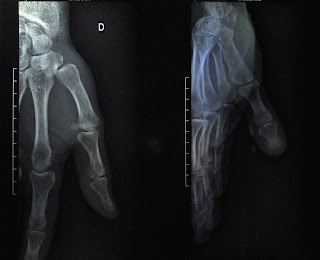 An X-ray of the author's right hand!